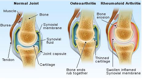 arthritis2